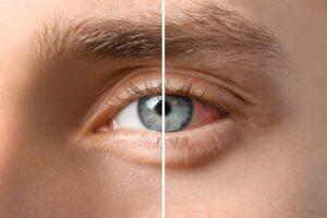 Eine Hornhautentzündung kommt häufig vor. Sie kann zu bleibenden Sehschäden führen