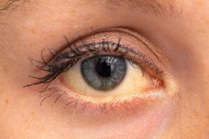 Ein gelbverfärbtes Auge fällt auf, ist bei Jüngeren aber keine Seltenheit