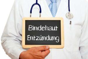 Bei Verdacht auf eine Bindehautentzündung ist eine ärztliche Untersuchung sinnvoll