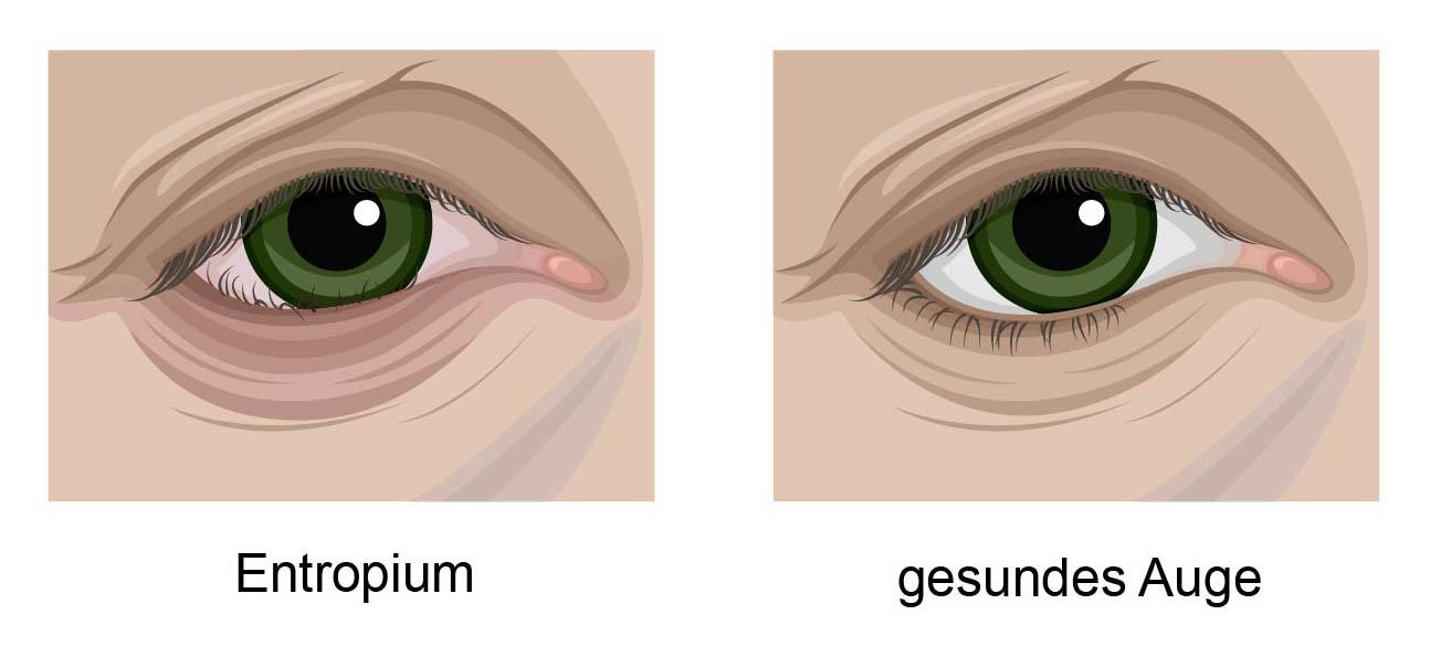 Links ein Entropium, das heisst, das untere Lid ist eingerollt. Die vorderen Wimpern sind nicht mehr zu sehen. Rechts ein gesundes Auge. Oben und unten sind alle Wimpern zu sehen.