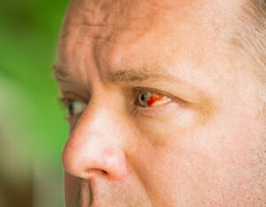 Eine rote Verfärbung im Auge - eine häufige Ursache sind trockene Augen