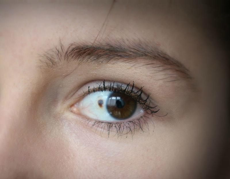 Aussehen blindes auge Wie sehen