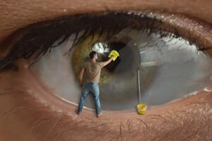 Auch auf der Augenhornhaut können sich Narben bilden. Kann man diese einfach wegwischen?