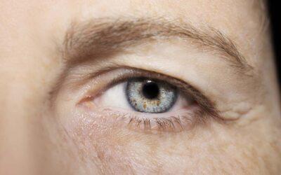 Auge eines Mannes mit Schlupflid