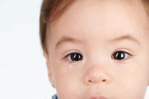 Einjähriges Mädchen blickt direkt in die Kamera. Das rechte Auge tränt.