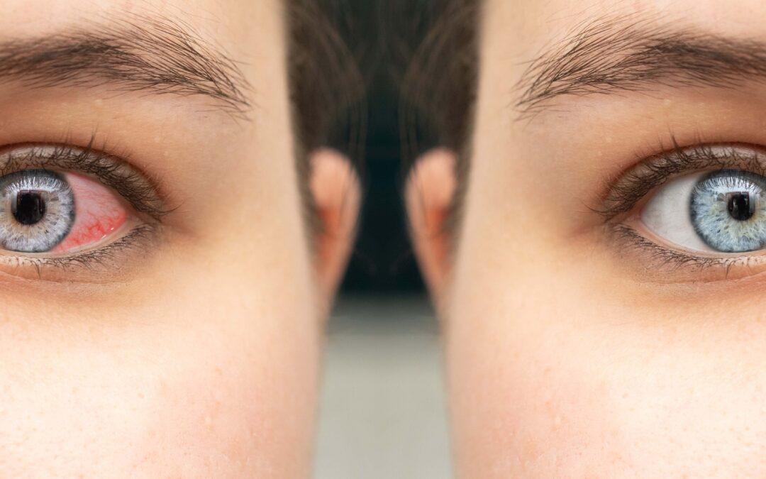 Wenn sich das Augenweiss verfärbt