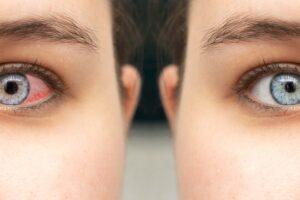 Ein gerötetes Auge kann man deutlich von einem