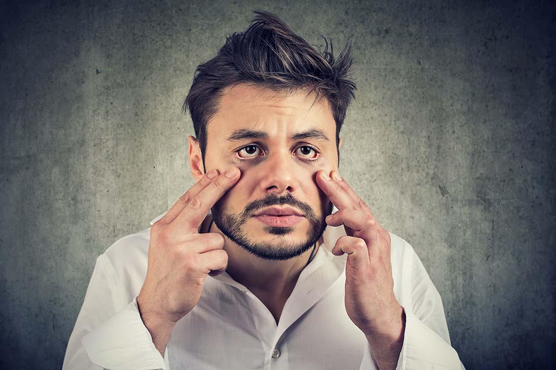 Mann schaut entmutigt während er sich mit den Fingern auf beiden Seiten die haut unter den Augen herunterzieht.