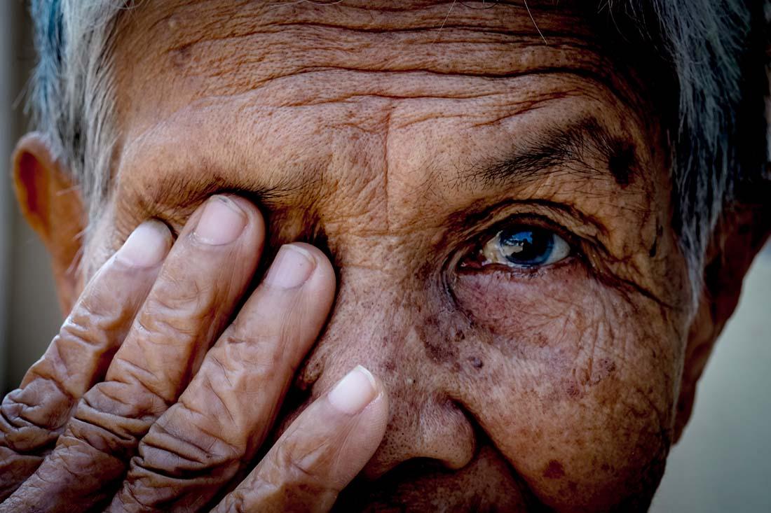 Alte Frau deckt mit der Hand das rechte Auge ab.