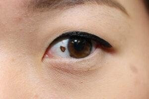 Linkes Auge einer asiatischen Frau. Links neben der Regenbogenhaut ist ein brauner Fleck.
