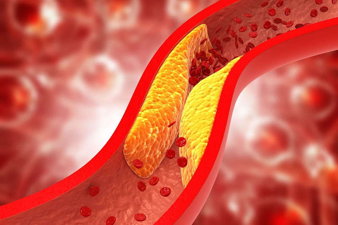 3D-Illustrtion eines Blutgefässes. Ablagerungen, in gelb dargestellt, verengen bzw. verschliessen das Blutgefäss komplett. Die roten Blutkörperchen können nicht mehr durchfliessen.