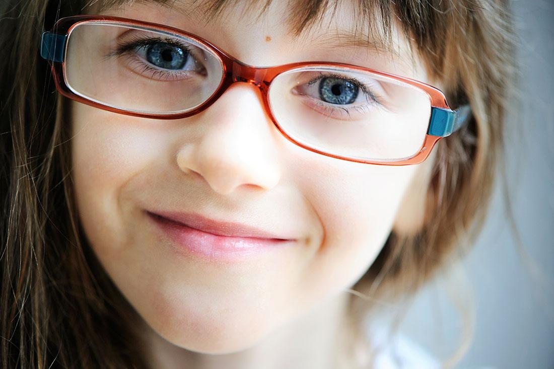 Augen eines Mädchens wirken durch die verschieden starken Brillengläser unterschiedlich gross.