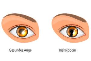 Gezeichnete Darstellung eines gesunden Auges links sowie eines Auges mit Iriskolobom rechts.