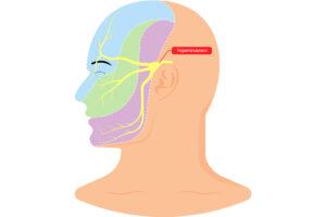 Grafische Darstellung eines Gesichts im Profil, einhgezeichnet ist der Trigeminusnerv, der vom Ohr in drei Zweigen richtung Auge, Nase und Kinn verläuft.