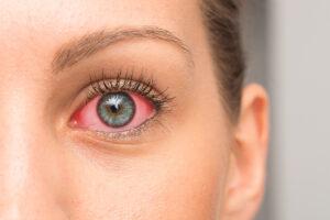 Das Gesicht einer Frau wird in einer Nahaufnahme gezeigt. Das sichtbare rechte Auge ist stark gerötet.