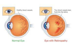 Illustration eines gesunden Auges und das eines Diabetikers mit Retinopathie.