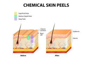 Eine Illustration zeigt, wie tief verschieden Arten von chemischem Peeling in die Haut eindringen und welche Veränderung das bringt.