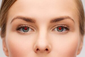 Eine Frau mit roten Augen, die durch das Foografieren mit Blitz entstehen.