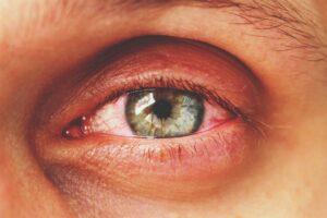 Rötliches, geschwollenes Auge ist im Fokus.