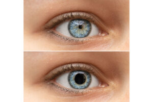 Zwei Augen sind abgebildet, eines mit einer sehr kleinen Pupille und das andere mit einer sehr großen.