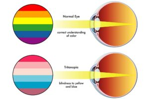 Blau-Blindheit