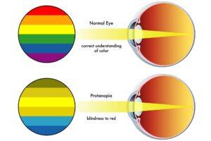 Rot-Blindheit