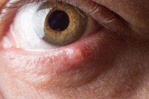 Am unteren Lidrand eines Auges ist ein Hagelkorn zu erkennen.