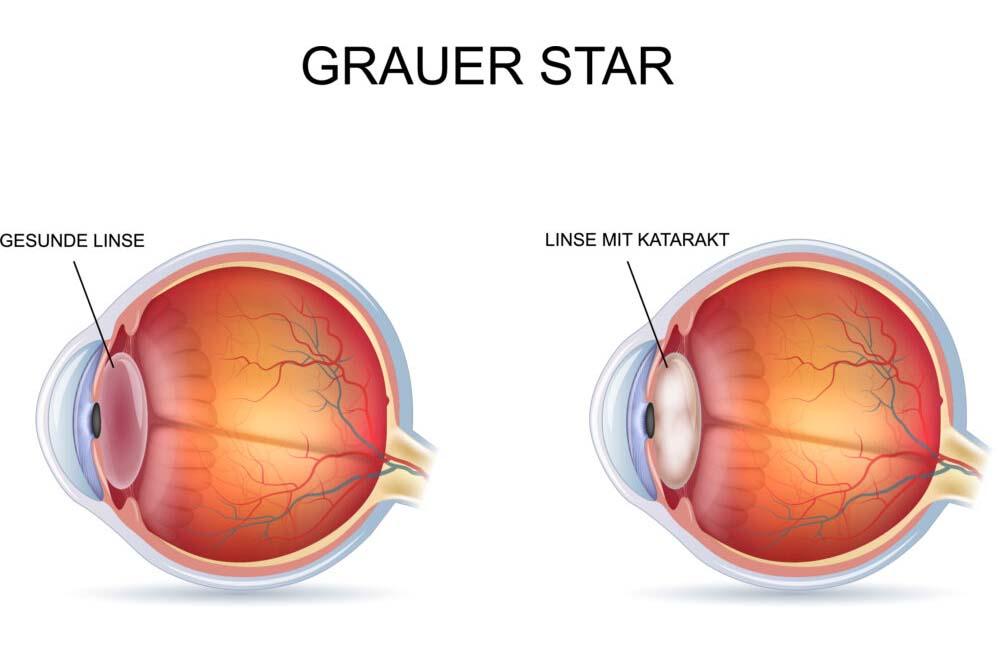 Darstellung Grauer Star