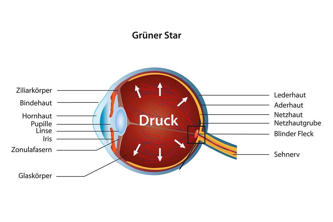 Darstellung Grüner Star